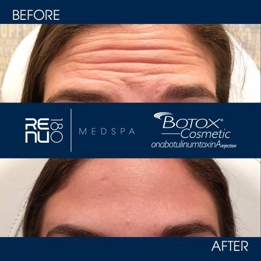Receiving Botox By Our Highly Trained Professionals