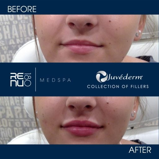 Before and After Juvederm Ultra Use
