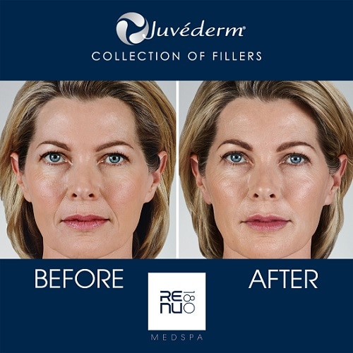 Transformation from Juvederm