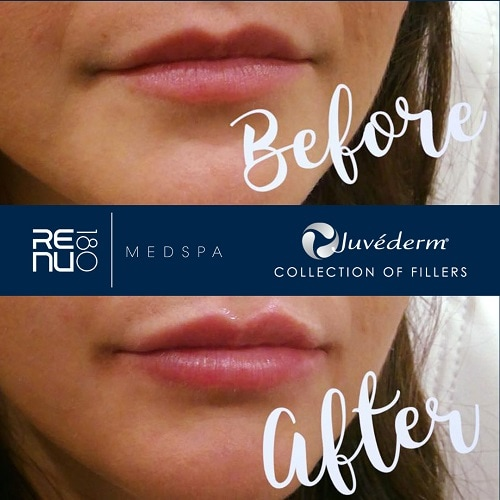 Juvederm Transformation Process